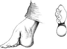 footbind1