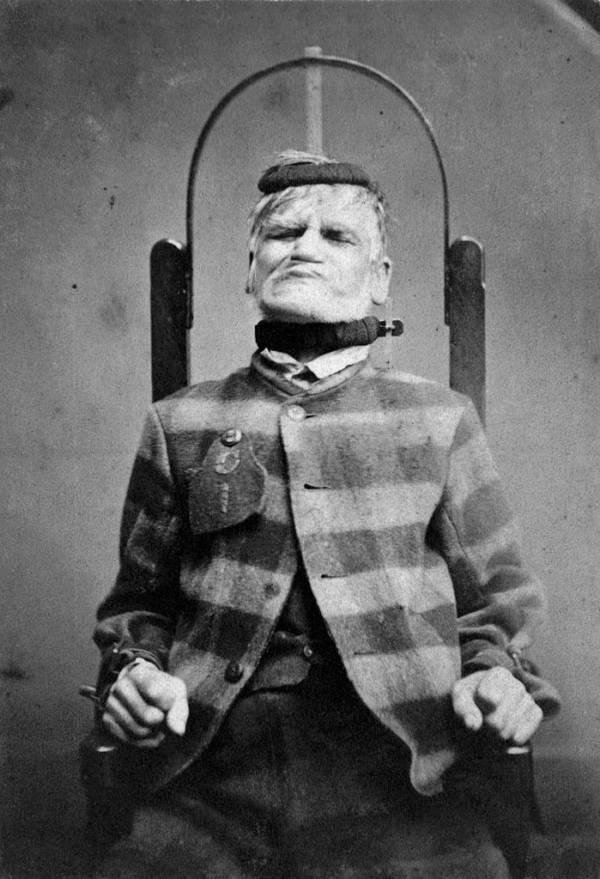 mental-asylums-chair-straps
